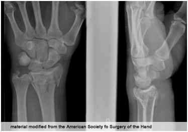 crushed hand reconstruction