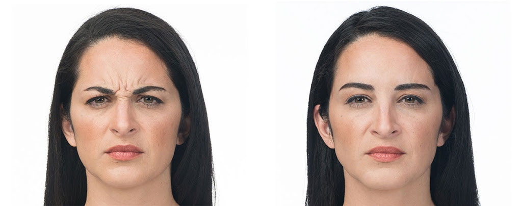 before and after botox treatment
