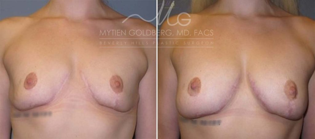 Breast Reduction and Breast Augmentation with Fat Grafting Patient Before and After Surgery