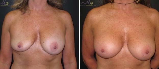 Breast augmentation revision procedure before and after patient results
