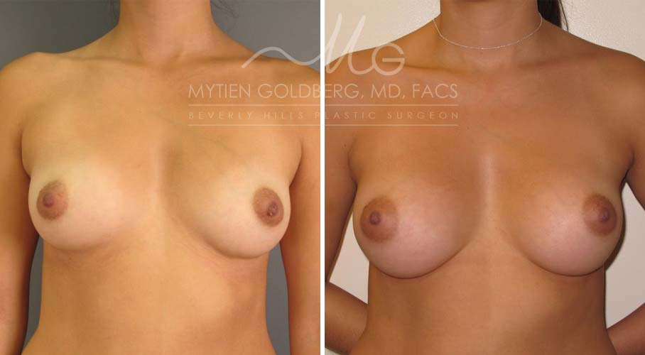 before and after breast augmentation surgery