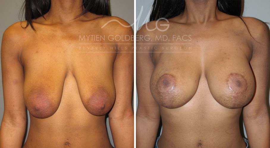 Breast Lift Patient Before and After Surgery