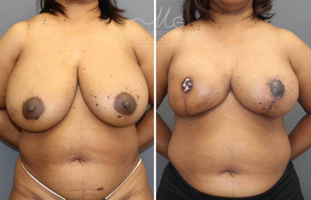 Breast Reconstruction 2 Stage Patient Before and After Surgery
