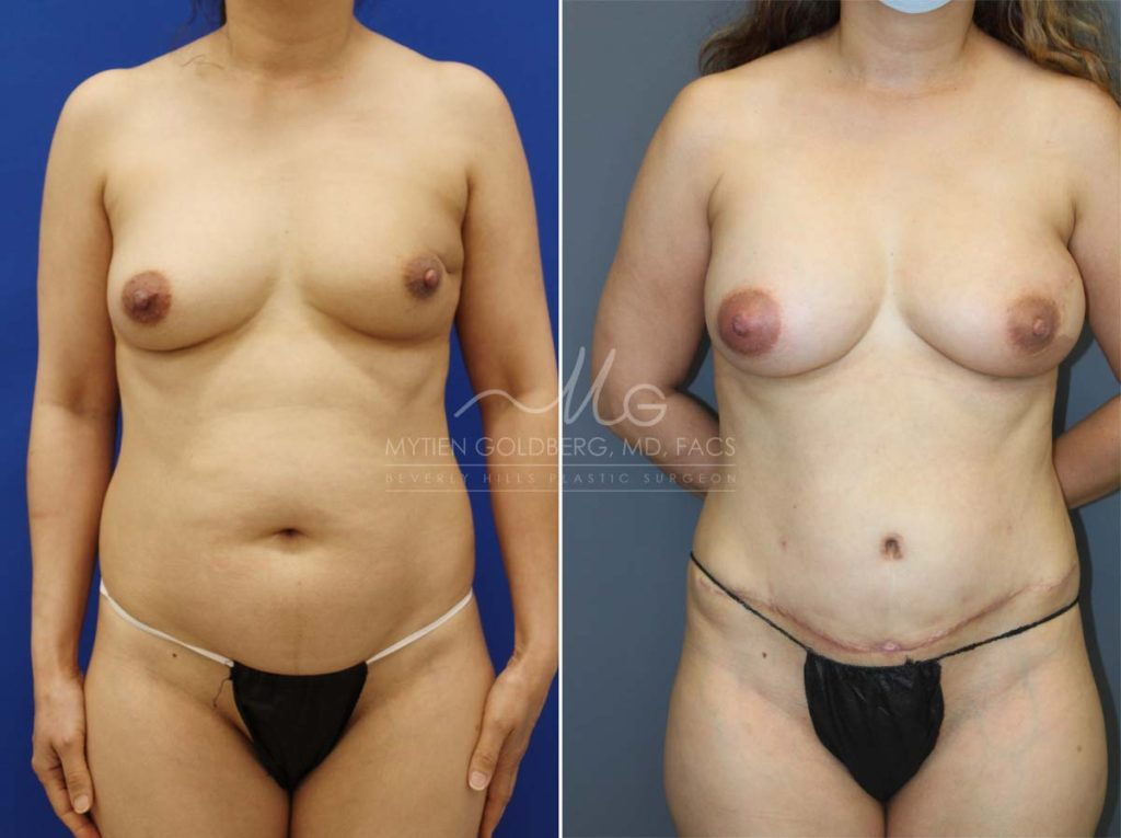 Breast Reconstruction Before and after - Goldberg Plastic Surgery Beverly Hills