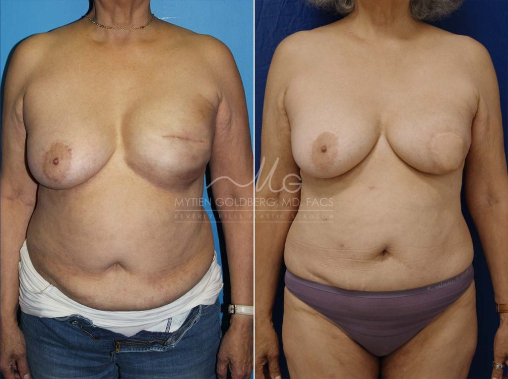 Breast Reconstruction (Hybrid) Before and after - Goldberg Plastic Surgery Beverly Hills