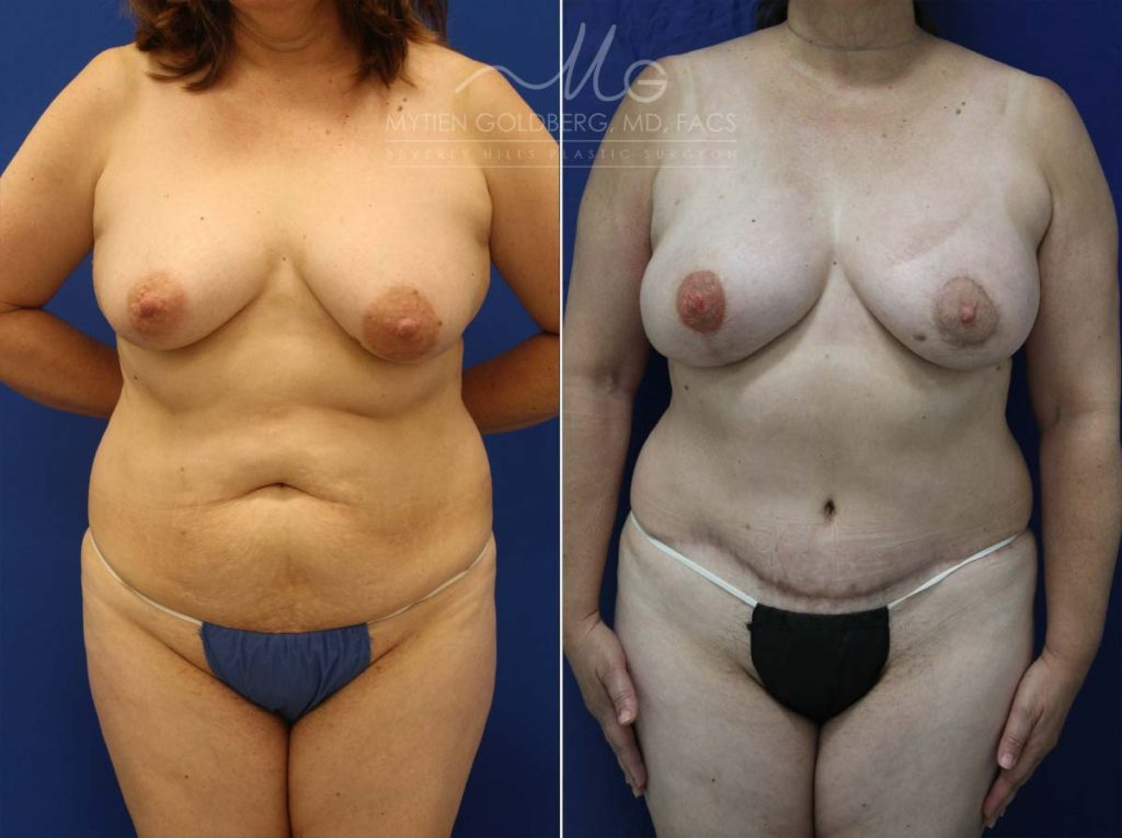 Breast Reconstruction DIEP Flap Patient Before and After Surgery