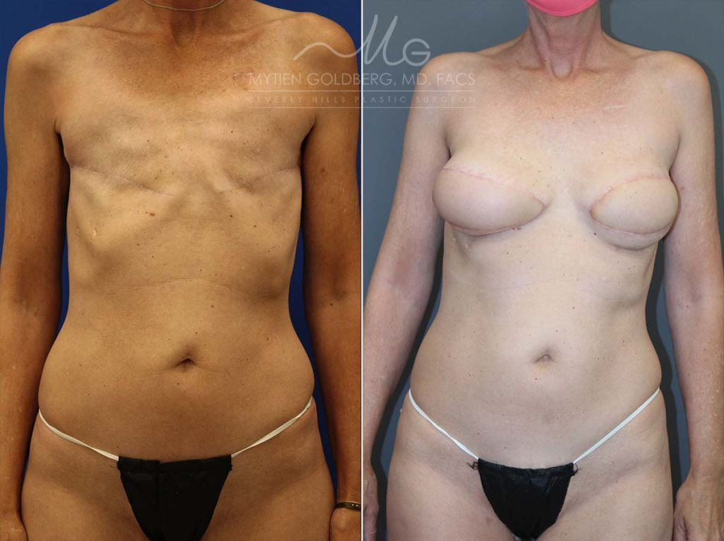 Hybid Breast Reconstruction Patient Before and After Surgery