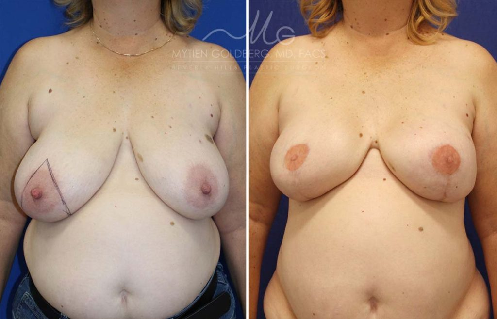Breast Reconstruction with Implant Placement Patient Before and After Surgery
