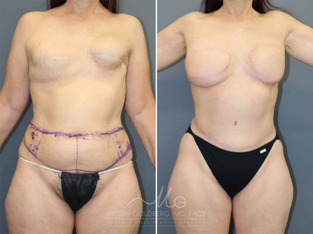 Love Handle Flaps Breast Reconstruction Patient Before and After Surgery