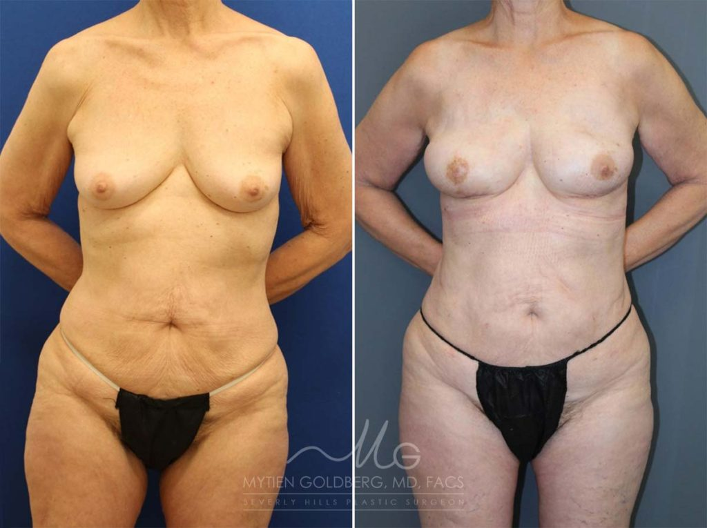 PAP Flaps Breast Reconstruction Patient Before and After Surgery