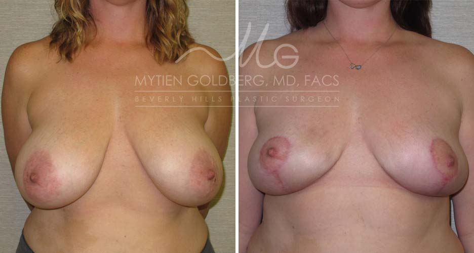 Breast Reduction Patient Before and After Surgery