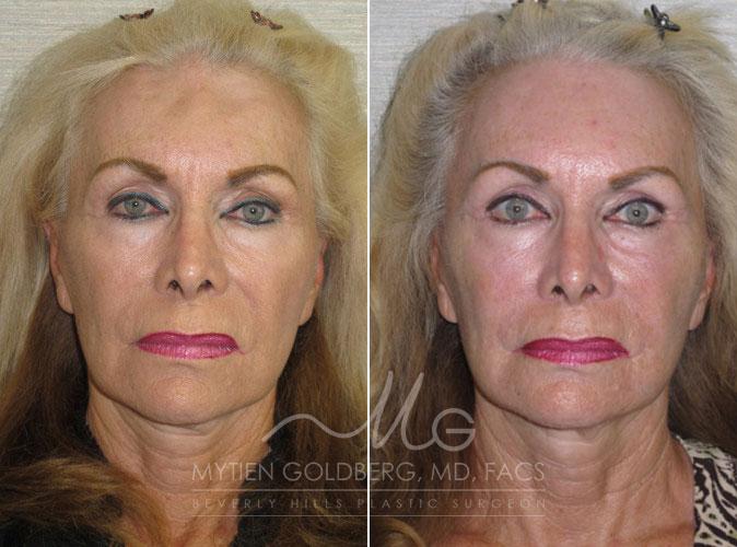 before and after brow lift surgery goldberg plastic surgery beverly hills