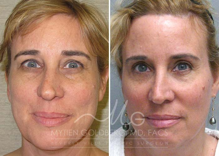 Eyelid surgery before and after   Goldberg Plastic Surgery Beverly Hills