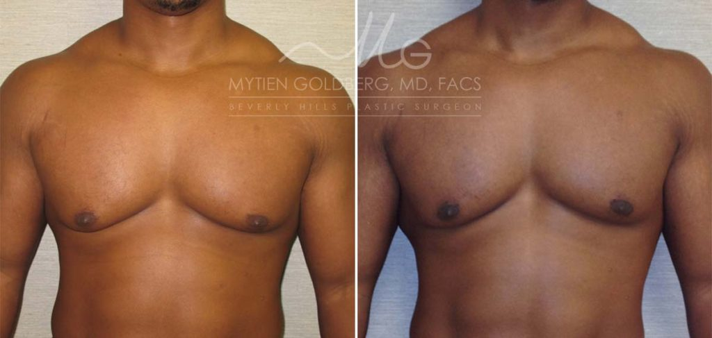 Gynecomastia Before and After Patient